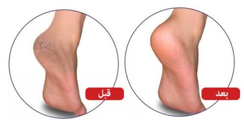 العلاج النهائي لمشكلة تشقق القدمين