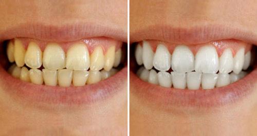 طرق منزلية لتبييض الأسنان الداكنة بسرعة